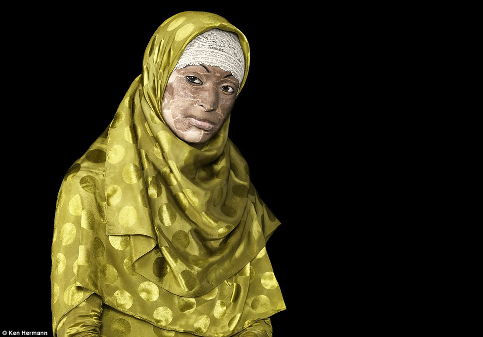 Living with the scars: Ayesha Siddika was burned after a marital dispute. To acid attack survivors in Bangladesh, dreams and hopes are splintered in seconds