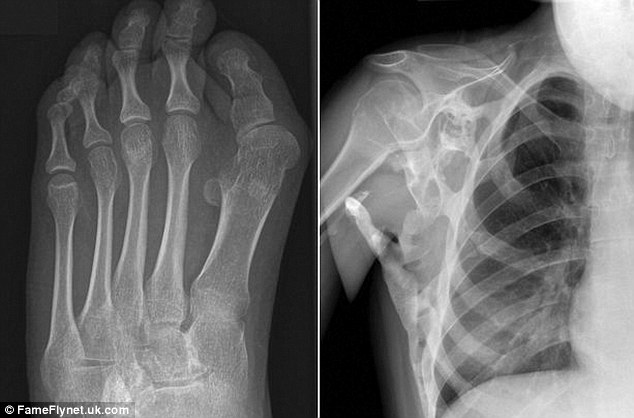 Bone growth caused by FOPs is different to regular bones