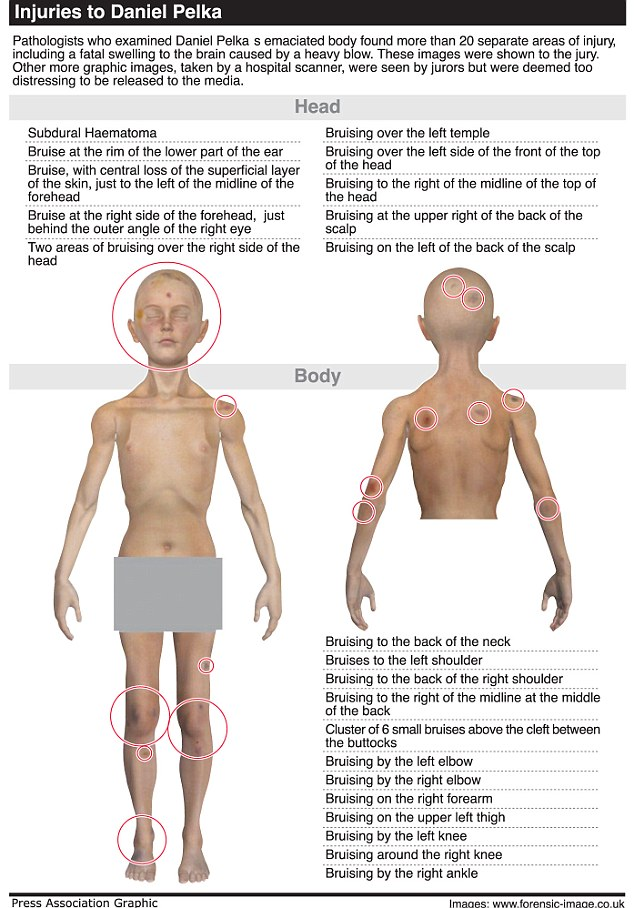 Murdered schoolboy: The catalogue of injuries inflicted on little Daniel Pelka, which were found when his body was examined