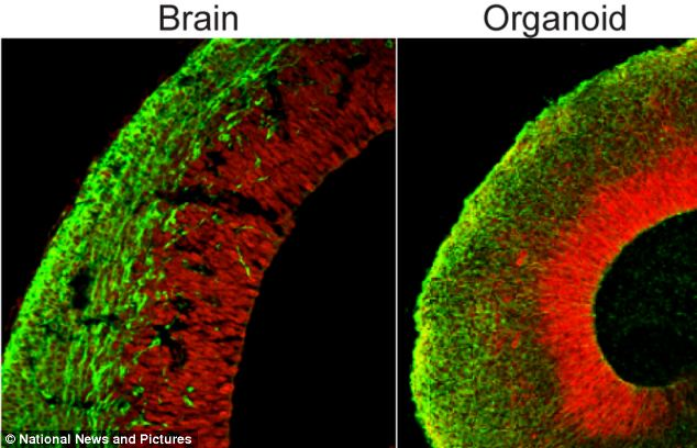 Scientists have created pea-sized brains from a patient¿s skin that could lead to cures for common neurological disorders such as schizophrenia and autism