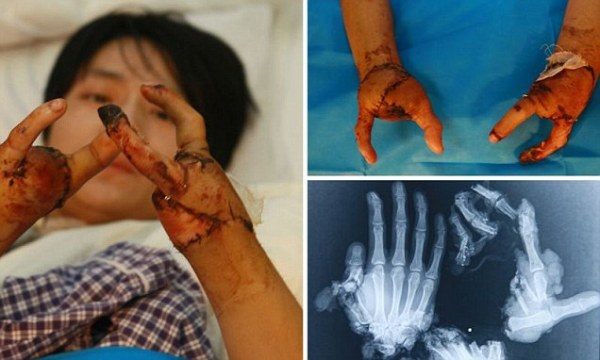 Factory worker gets new 'pincer hands' after industrial ...