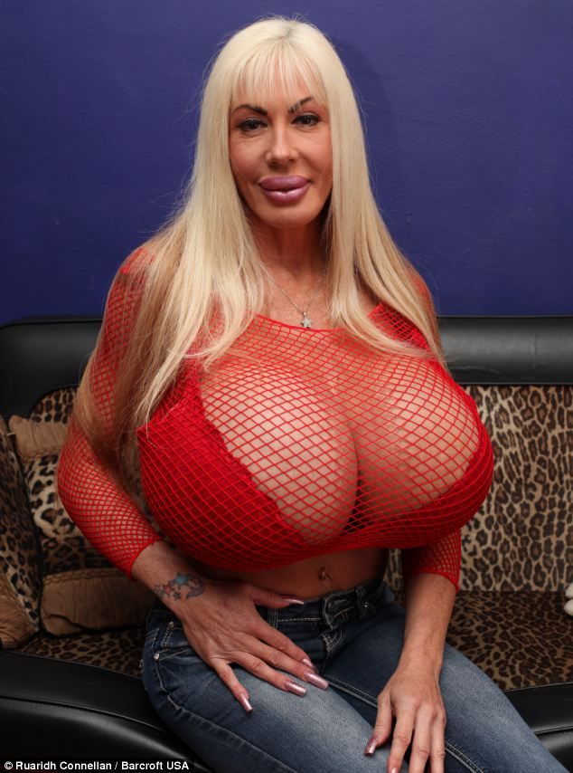 Ms Starr was already a 32F when she opted for the polypropylene string implants in 1999