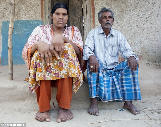 Tall tale: The 28-year-old's condition has seen her hands and feet grow abnormally large, seen here compared to her father