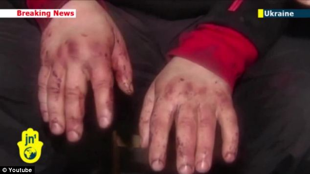 Dmytro Bulatov's badly swollen hands appeared to show nail marks from his alleged crucifixion