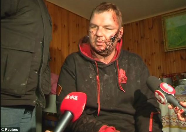 The 35-year-old told rescuers that his kidnappers kept him in the dark for more than a week, beat him severely, nailed him to a cross and sliced off a piece of his ear