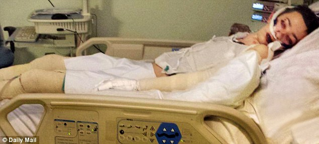 In bandages: Max Brown, 13, on a ventilator in intensive care after ...