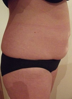 Before and after: Sarah, 42, from Sheffield had a £250 Aqualyx injection and slimmed down