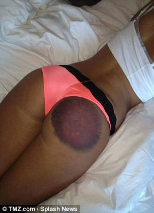 Ouch: Dickson is suing Playboy and the radio DJ who caused this bruise after hitting her right buttock