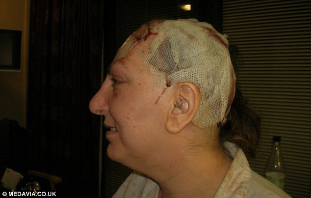 Woman With Rare Cancer Has 85 Of Her FOREHEAD Removed