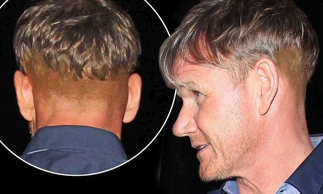 Gordon Ramsay Sparks New Hair Transplant Rumours With