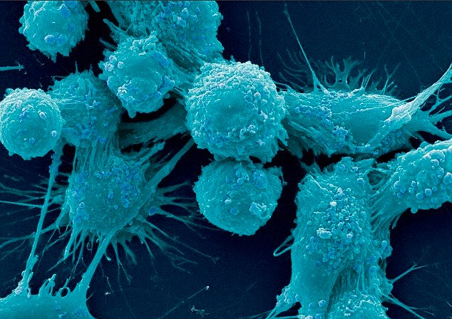 Researchers at the University of California have discovered that men infected with the sexually transmitted infection  trichomoniasis are more susceptible to developing prostate cancer. The study found the infection encourages the growth of cancer cells in prostate cells (pictured under the microscope)