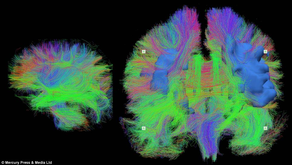 Colourful images show the activity in the human brain in a kaleidoscope of colours and will go on show for the first time in St Andrew Square, Edinburgh. This Wiring The Brain image shows shows detailed maps of brain wiring in a sleeping newborn baby (left) and an adult in their seventies (right) visualised using an MRI scanner