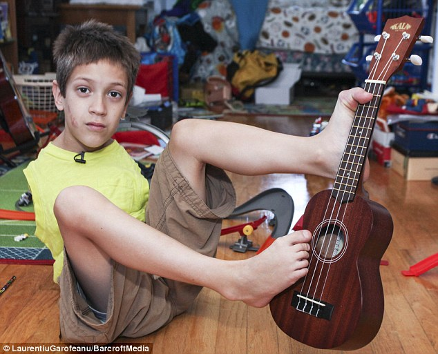 While Timmy, pictured playing the ukelele, 'initially scooted around on his bum', he had learned to walk by the time he was two
