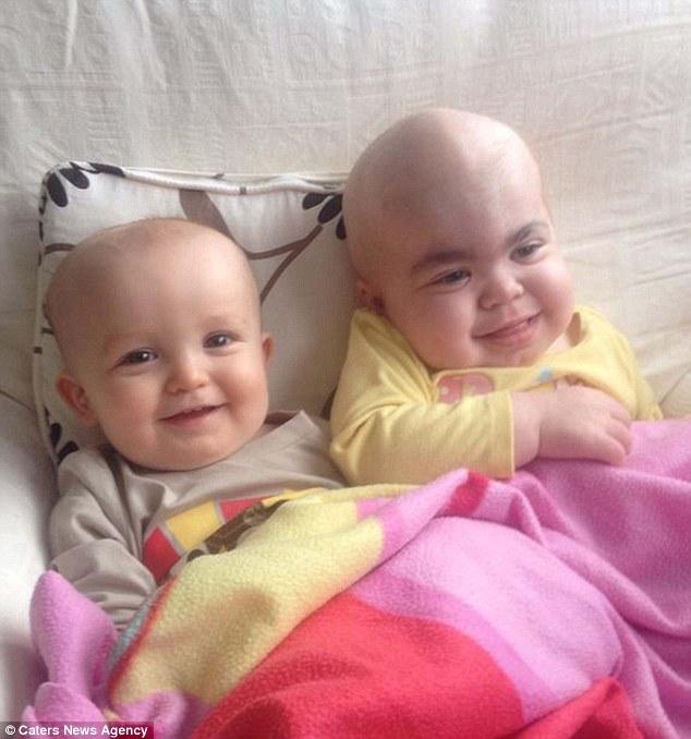 Dez meses de idade, Jacob Davis, à esquerda, doou sua medula óssea para ajudar a salvar a vida de sua irmã mais velha morrer Seren-Rose, certo