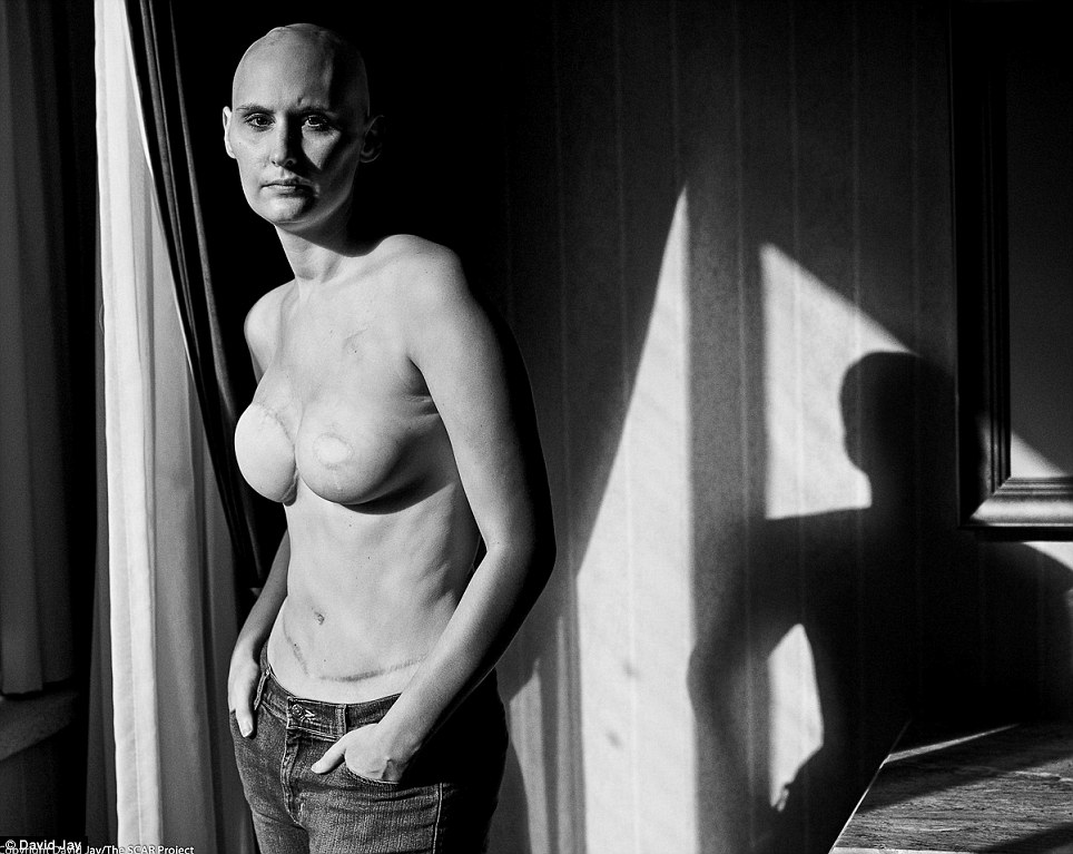 In his photos, Jay said the photos were not about breast cancer, it was about depicting the 'raw and honest' realities of young women