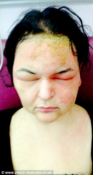 But hours after applying the Clairol Nice 'N Easy dye, her face had ...