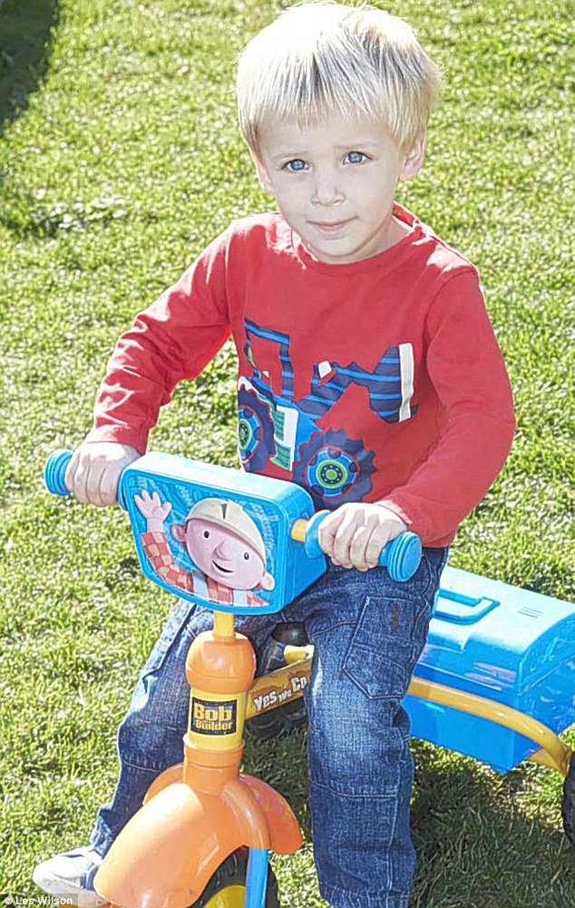 At 12 weeks, Callum Newman was admitted to hospital with severe eczema ...