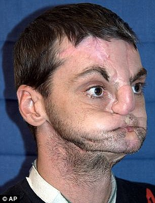Disfigured: When Richard Norris shot himself in the face in 1997 he lost his nose, lips and most movement in his mouth