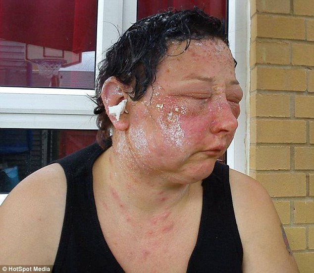 Jo Thomson, 39, saw her face swell to twice the usual size after a terrible allergic reaction to hair dye