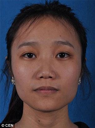 Yang Jiayi, a 21-year-old clerk, before surgery