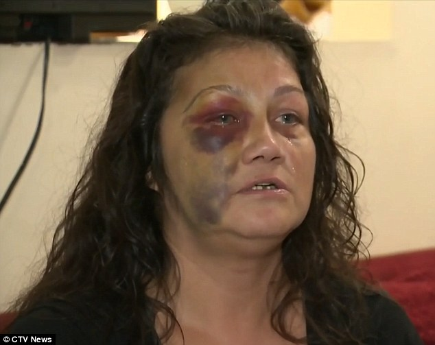 Assaulted: Lana Sinclair said she was more concerned for her eight-year-old son while a police officer allegedly assaulted her following reports of screaming coming from her home on Halloween night