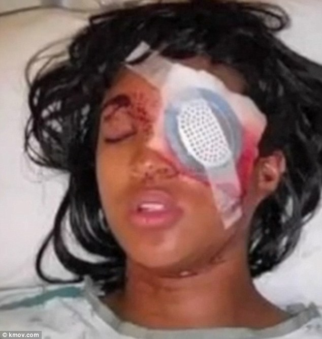 Dornella Conner says she was at a gas station in the St Louis suburb in a car being driven by her boyfriend when an officer fired a non-lethal 'bean bag' round at them as they tried to drive away, showering her with glass