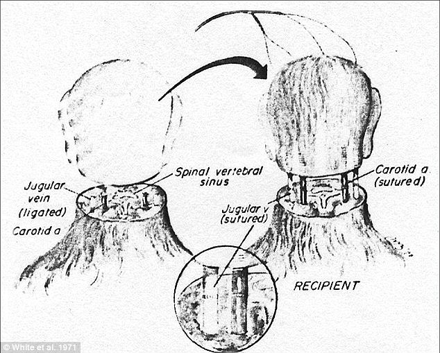 In 1970 Dr Robert White transplanted the head of one monkey onto the body of another, as shown in this diagram. If Mr Spiridonov's head were to be successfully transplanted his jugular vein and spinal cords would have to be similarly fused with those of his new donor body