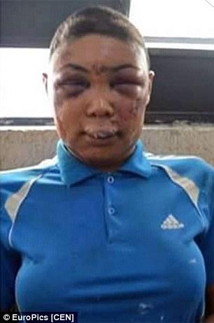 Images of transgender prisoner whose face was pulverized