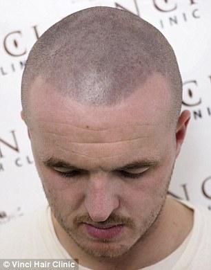 Bald Men Turn To Hair Tattoos To Creates The Illusion Of