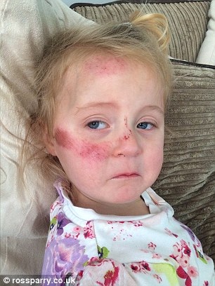 Scarred: Lucie, three, was treated in hospital