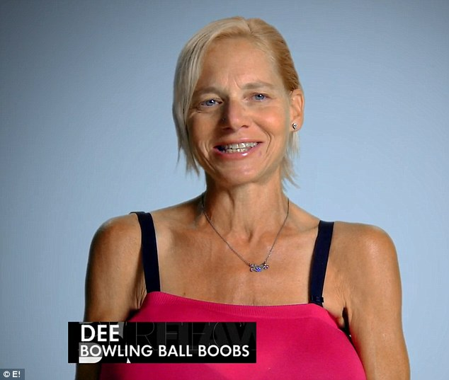 Desperate measures: Dee (pictured) says she is willing to risk her life to have Dr Terry Dubrow and Dr Pual Nassif remove her massive breast implants and salvage her breasts on the upcoming episode of Botched
