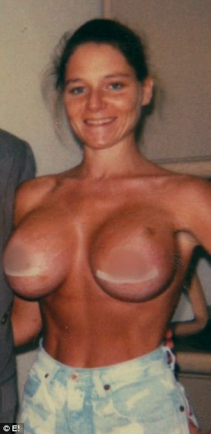 Big dreams: Dee had size A breasts when she was younger and got her first set of 500 cc implants (pictured) when she was working as a dancer