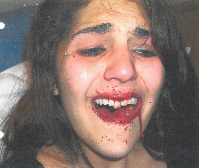 Alexis Acker pictured after the attack in 2013 in which she lost two teeth and claims she has been left with medical problems