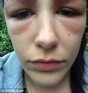 teen had severe allergic reaction to busy eyebrow treatment daily mail online
