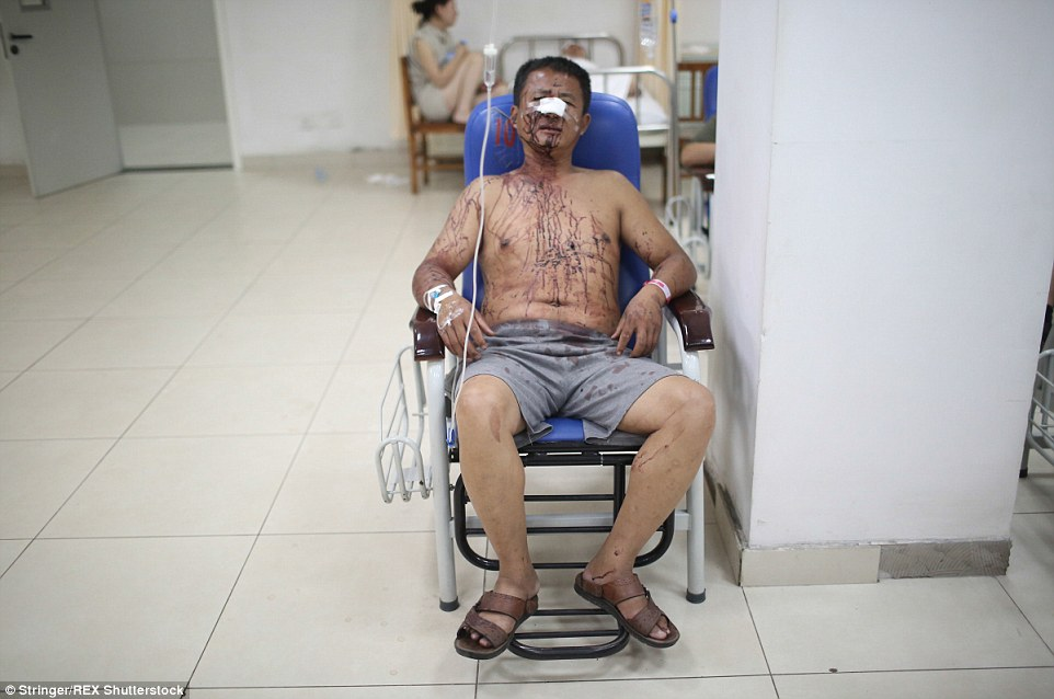 Shell-shocked: An injured man is covered in blood as he waits in hospital after the explosion at the warehouse in Tianjin