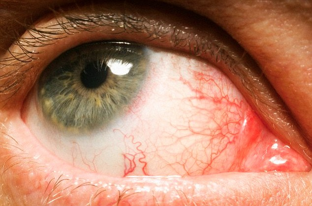 Bloodshot eyes can be a sign of serious conditions including conjunctivitis, blepharitis, uveitis and glaucoma
