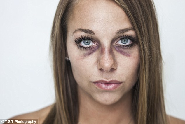 Image result for battered women face pictures