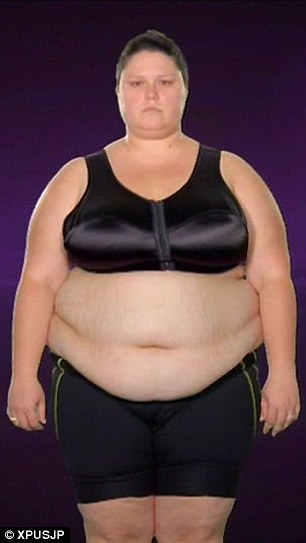 Obese Texas woman who was told she was too big to have ...