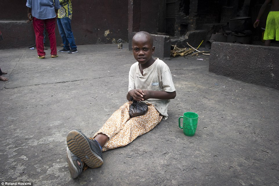 Prejudice: Some of the children are accused of being witches because of a physical disability, like Bienvenue. The nine-year-old has paralysis in his arms and legs following ceberal malaria, which led his aunt to throw him out. His mother is dead