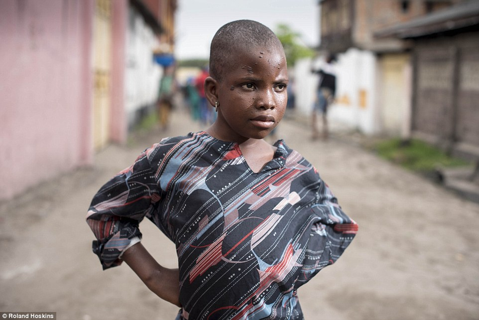 Silent pain: No one knows why Dorcas was accused of being a witch - those who found her roaming the streets of Kinshasa, starving, five days before MailOnline arrived could not even find out her name. The other children gave the little girl her name, Dorcas