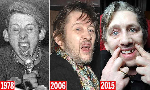 Pogues Singer Shane MacGowan Gets A Full Set Of New