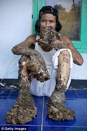 Dede Koswara, nicknamed 'The Tree Man', suffered from a rare and incurable disease that caused bark-like warts to grow uncontrollably on his body