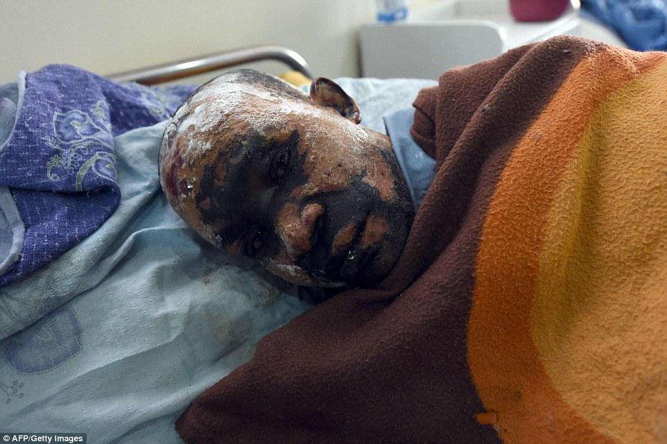Um homem encontra-se em sua cama em uma enfermaria de hospital em Maiduguri, capital do nordeste da Nigéria Estado de Borno depois de ser gravemente ferido pelas chamas