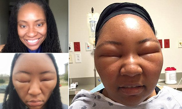 Chemese Armstrong Shares Photos After Allergic Reaction To