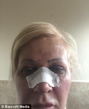 Extreme lengths: Janet recovering from a nose job