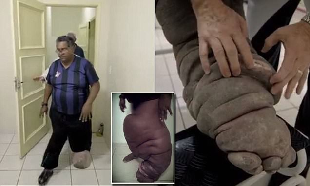 Brazilian Man Infected With Elephantiasis After Being