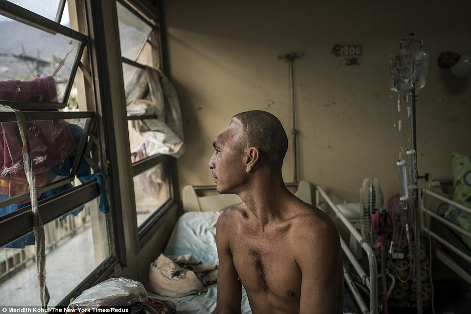 Life on hold: Julio Rafael Parucho, who suffered a serious head injury, and has had to wait a year for a follow-up operation because of a shortage of doctors in Puerto la Cruz