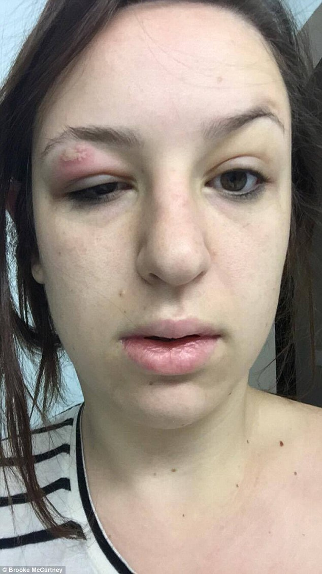 Sydney Woman Shares Horrific Pictures Of Infected Skin