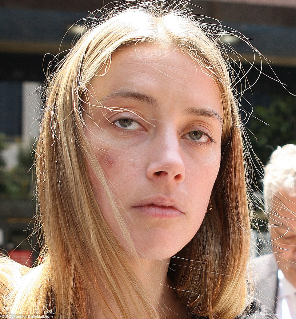 Emaciated Amber Heard with marks of injections in her arms was seen with his ex-wife