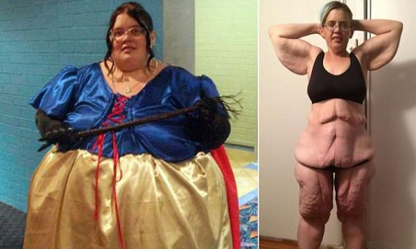 Queensland woman left with 6 STONE of excess skin after ...